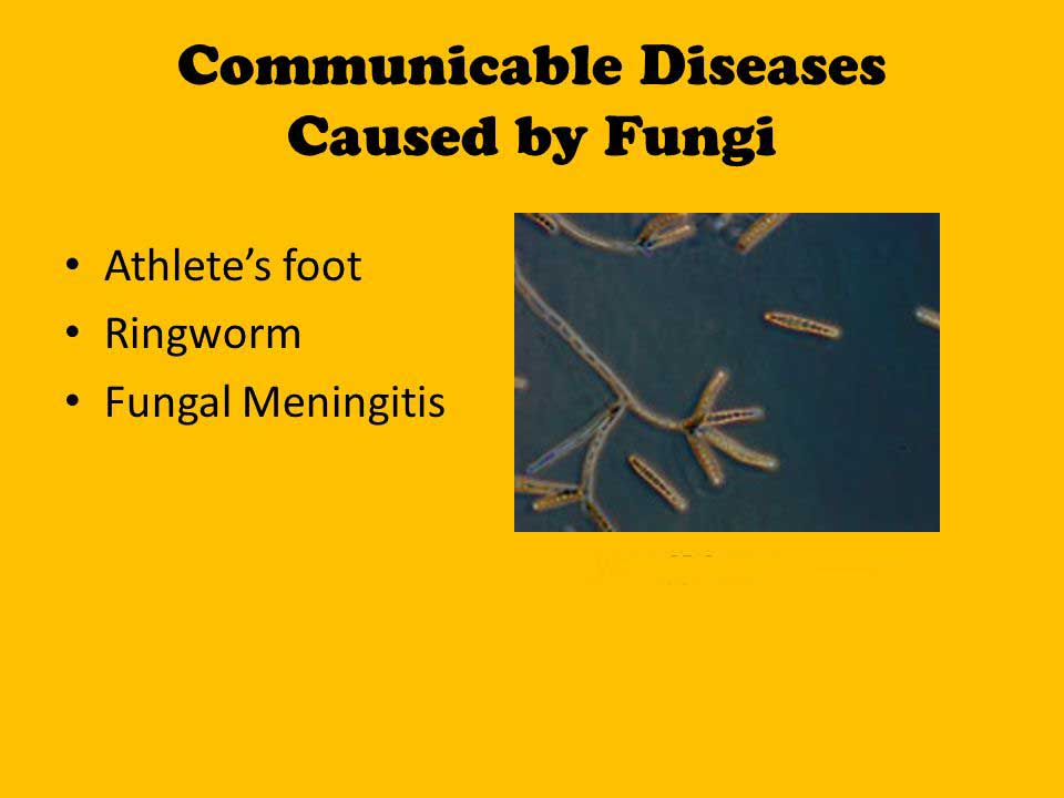 disease-caused-by-fungi-in-human-bodys
